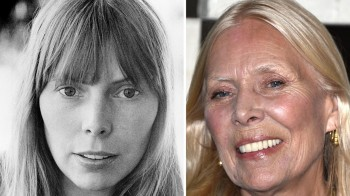 Legendary Joni Mitchell then and now! Morgellons Sufferer and advocate for those who have the disease.